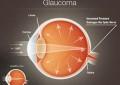 Glaucoma, visite gratuite in piazza a Chieti