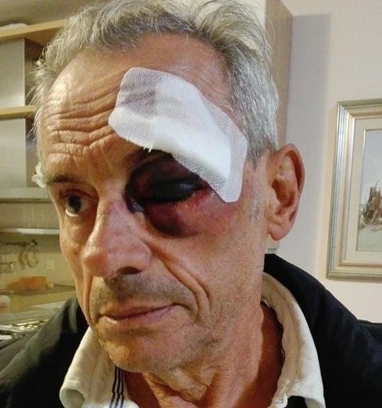 """Pescara, ciclista investito lancia appello: """"Trovate il pirata"""""""