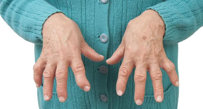 L'Aquila: il 9 controlli gratuiti per prevenire l'artrite reumatoide