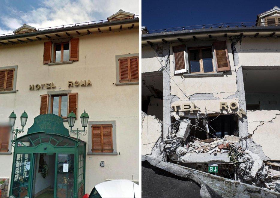 Terremoto: Migliorano condizioni titolare Hotel Roma