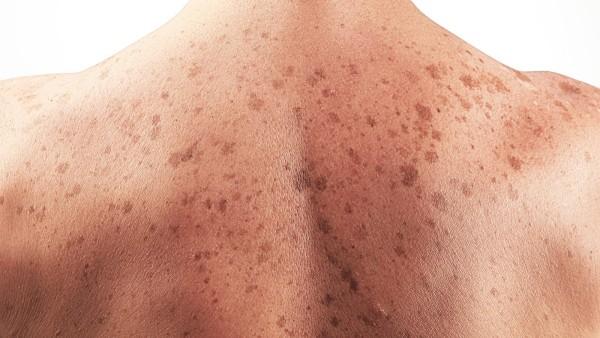 "Pescara: ""I melanomi e i sarcomi nei tessuti molli"""